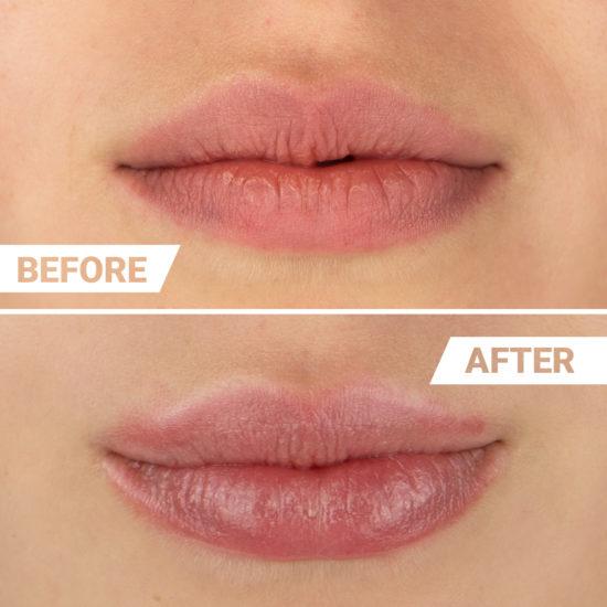 Vorher Nachher Ergebnis Lippenvolumen