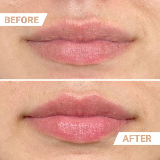 Vorher Nachher Effekt Lippenvolumen