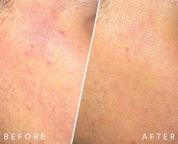 Vorher Nachher Hautrötung