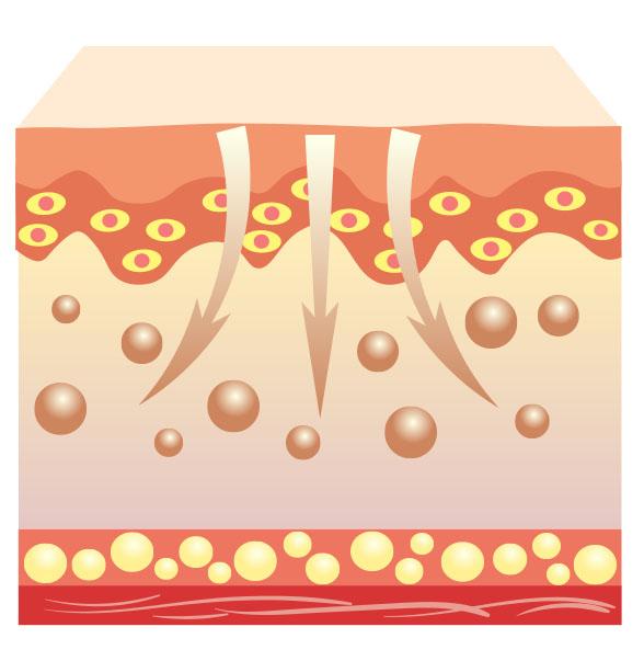 niedermolekulares Hyaluron