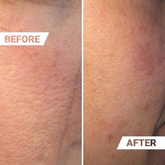 Vorher-Nachher-Effekt porenverfeinerndes SMOOTH Serum